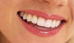 Teeth Whitening SA
