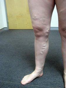 varicose-vein-treatment-darwin