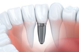 dental-implants-adelaide-from-yes-dentistry